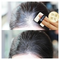 頭發纖維粉密發增發發跡線補發神器發量增多發際線噴霧遮蓋稀少