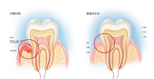 牙医推荐!出血、红肿、口臭……秒杀各种牙龈问题的牙膏专业选手~