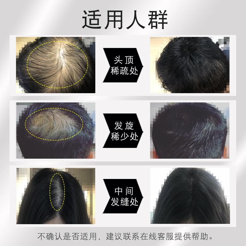 苏玫氏头发纤维粉视觉密发增发喷雾补发神器头顶稀少秃遮盖假发男