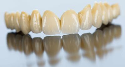 小编精选:为什么明星的牙齿那么白,让我来告诉你—牙齿美白篇