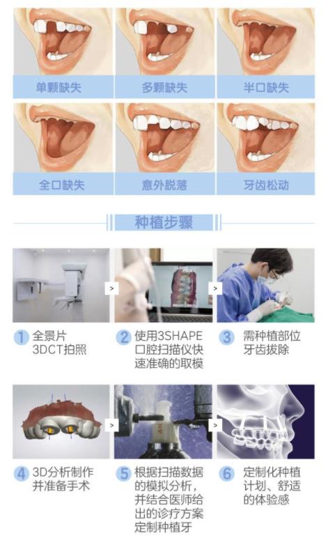 限地区:奢己 韩国进口登腾种植牙 口腔齿科