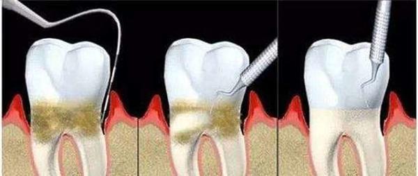 一次洗牙,认清牙齿真实面目!洗牙后让微笑从齿绽放~