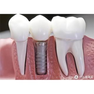 动辄上万的种植牙,竟然也有低于5k的?