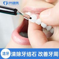 拼健康 单次洗牙洁牙抛光 去除牙结石