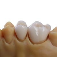 DALEK口腔 戴立克二氧化锆全瓷牙  二代进口全瓷牙