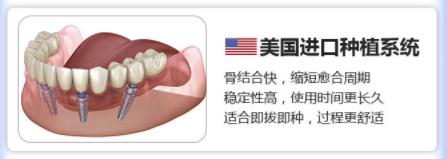 广大口腔 美国进口种植牙