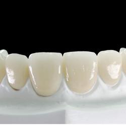 戴立克 贝朗二氧化锆全瓷牙