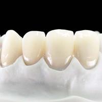DALEK 戴立克 二氧化锆3M拉瓦全瓷牙