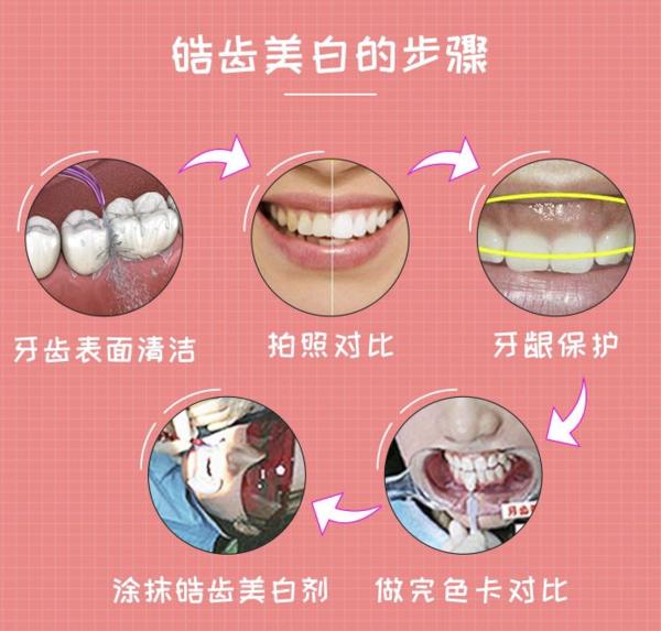 牙管家 皓齿美白+超声波洁牙 牙齿美白套餐