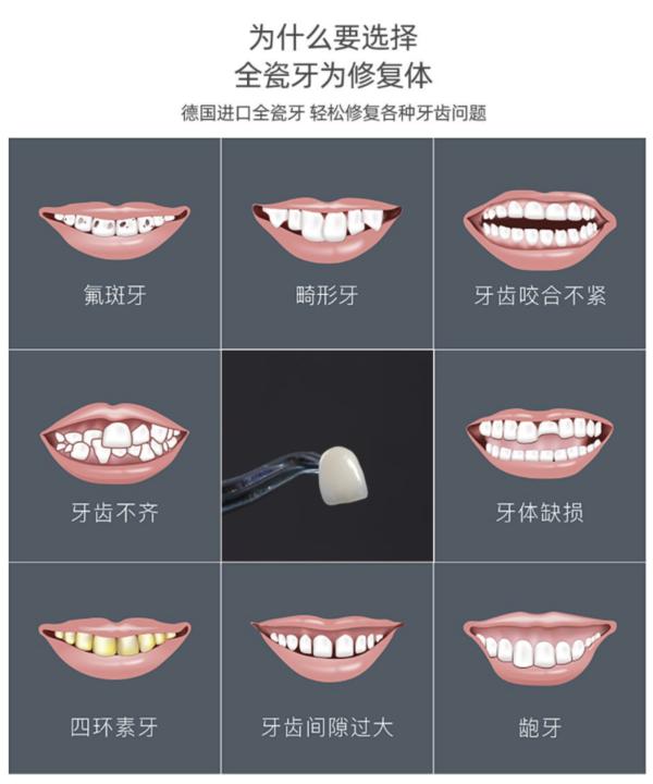 DALEK 戴立克 二氧化锆全瓷牙