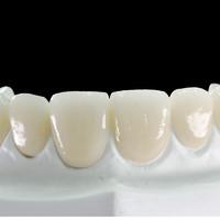 戴立克 二氧化锆 爱尔创全瓷牙